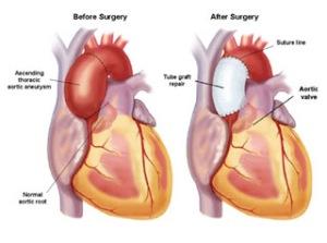 ascending-aortic-aneurysm