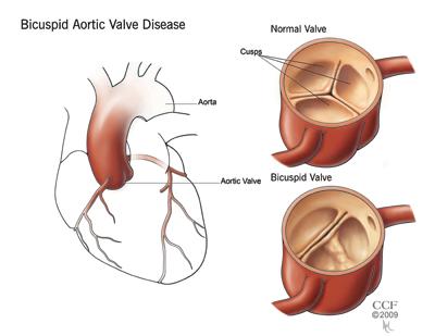 Diagnosis | Anthony's Heart Valve Replacement Saga