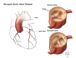 bicuspid_aortic_valve_disease