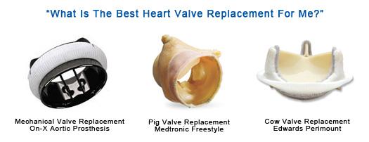 best-heart-valve-replacement-1
