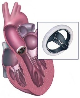 india-surgery-pediatric-aortic-valve-replacement-repair3